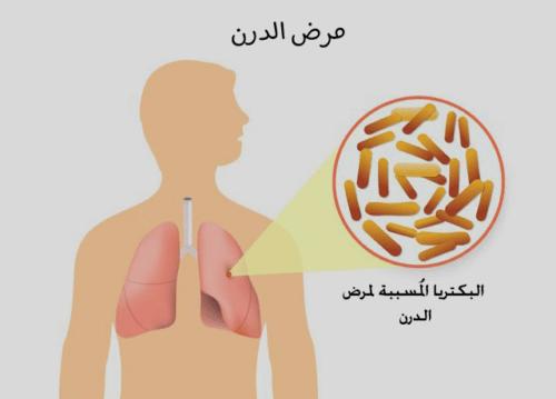 مرض الدرن