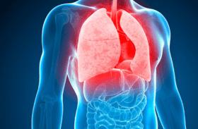 مرض الدرن أو السُل الرئوي : مُسبباته وأعراضه وطرق علاجه والوقاية منه