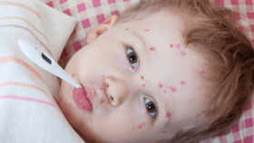 أعراض الحصبة عند الأطفال وكيفية التعامل مع الطفل المريض والتطعيم ضد الحصبة