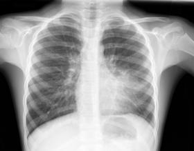 التهاب الرئة عند الأطفال وحديثي الولادة : أسبابه، وأعراضه وطرق الوقاية منه